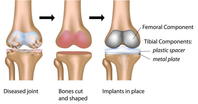 The Procedure of Knee Replacement Surgery