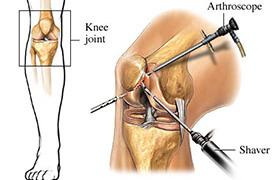 Arthroscopy Surgery in Kota