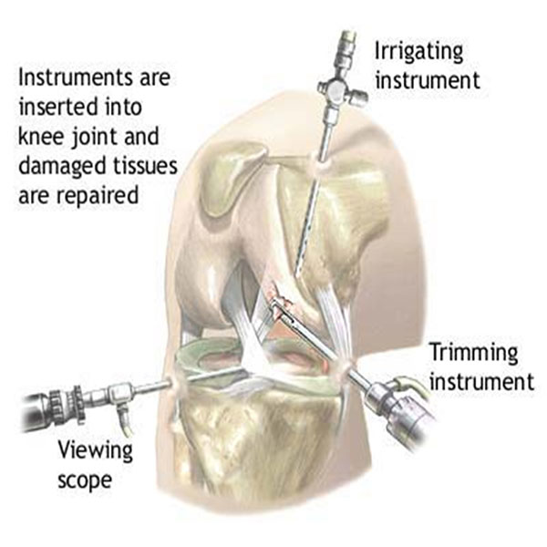 Joint Replacement Surgery in India