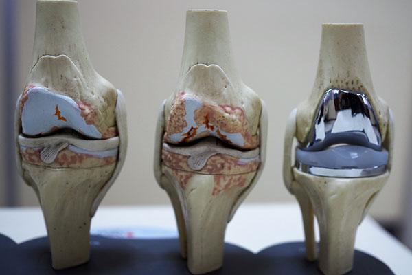 Complex Knee Replacement